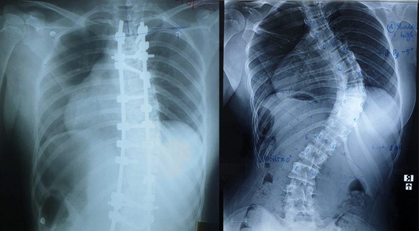 Establishment of Paediatric Orthopaedic Spine Unit