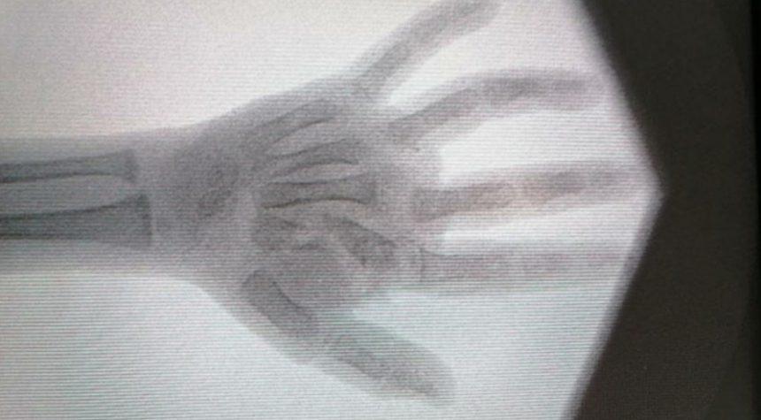 Revascularization of multiple level amputation of fingers.
